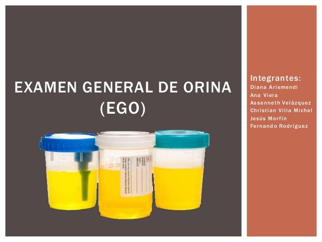 Examen General De Orina Slideshare | Share The Knownledge