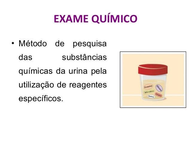 Urina i exame