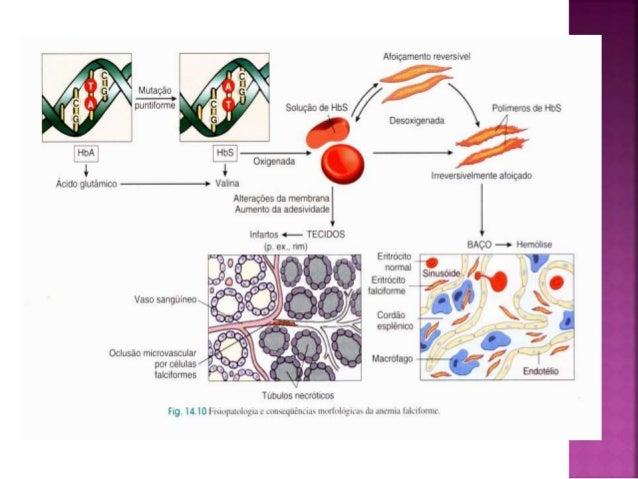 Exame anemia falciforme