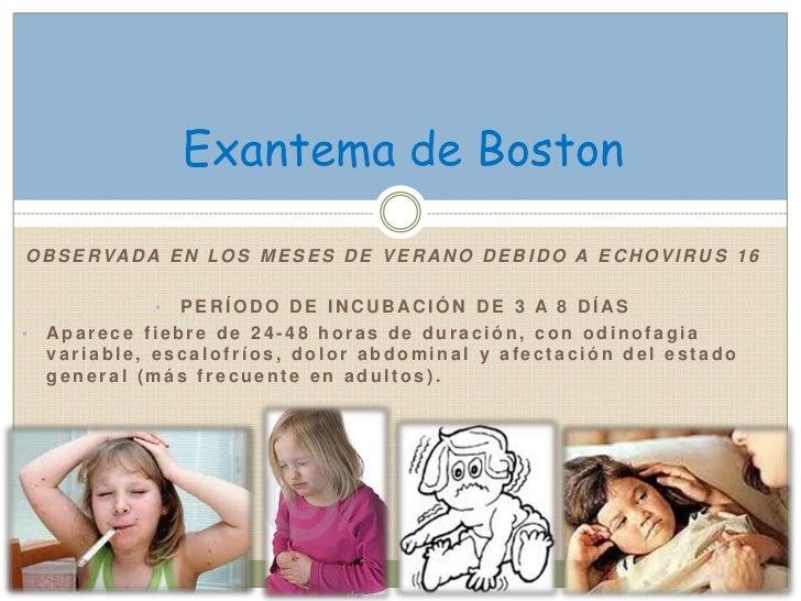 Exantema de BostonO B S E R VA D A E N L O S M E S E S D E V E R A N O D E B I D O A E C H O V I R U S 1 6               •...