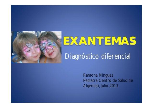 EXANTEMAS Diagnóstico diferencial Ramona Mínguez Pediatra Centro de Salud de Algemesi, Julio 2013