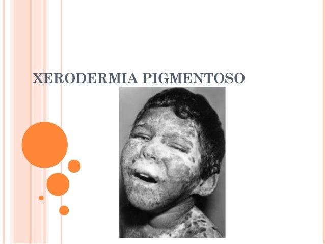 XERODERMIA PIGMENTOSO