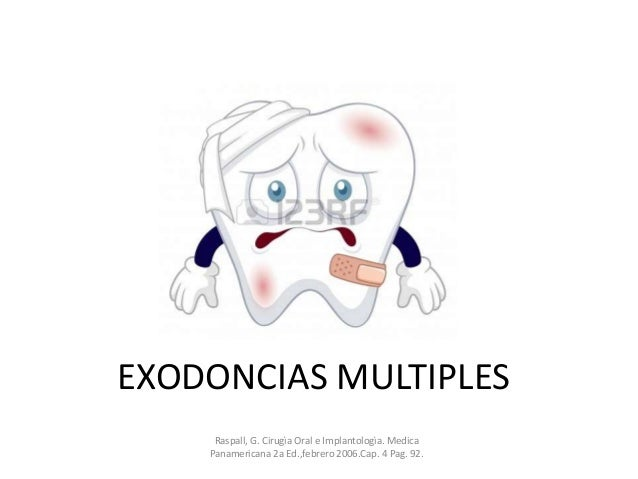 EXODONCIAS MULTIPLES Raspall, G. Cirugìa Oral e Implantologìa. Medica Panamericana 2a Ed.,febrero 2006.Cap. 4 Pag. 92.