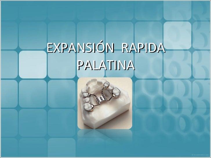 Expansión  palatina