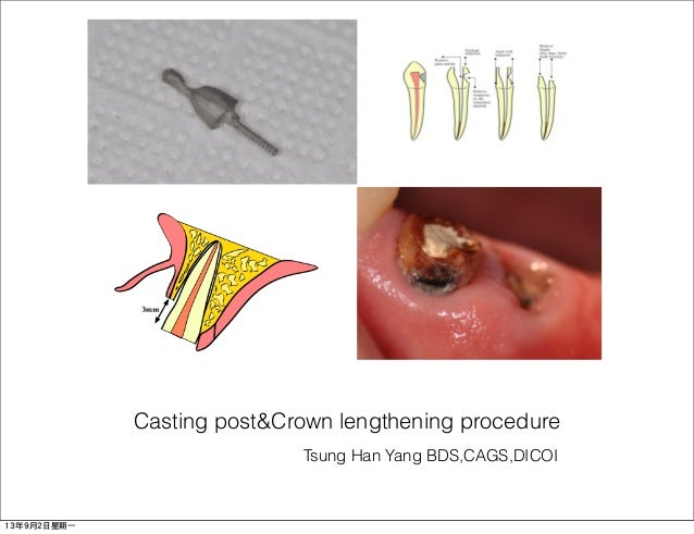 Tsung Han Yang BDS,CAGS,DICOI Casting post&Crown lengthening procedure 13年9月2日星期一