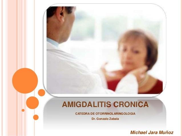 AMIGDALITIS CRONICA CATEDRA DE OTORRINOLARINGOLOGIA Dr. Gonzalo Zabala  Michael Jara Muñoz