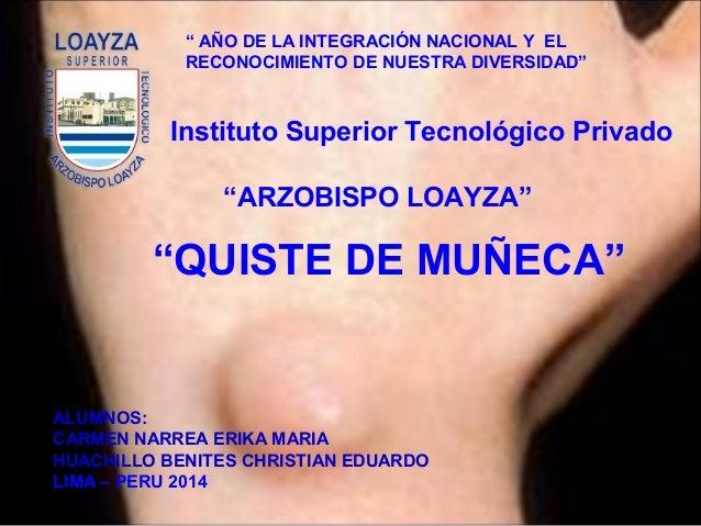 """""""QUISTE DE MUÑECA"""" ALUMNOS: CARMEN NARREA ERIKA MARIA HUACHILLO BENITES CHRISTIAN EDUARDO LIMA – PERU 2014 Instituto Super..."""