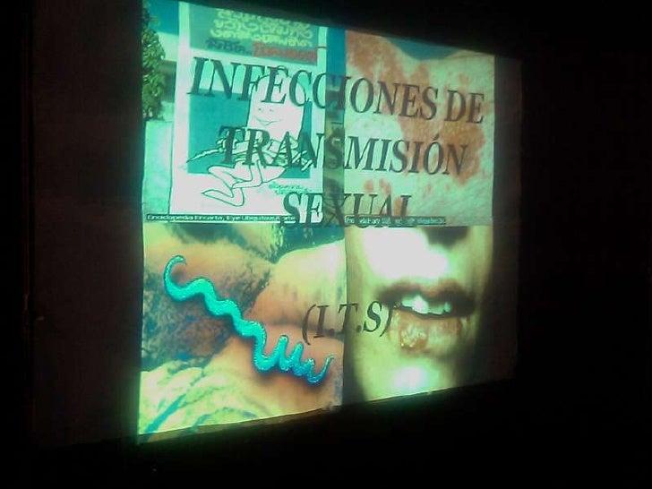 Exposicion sobre infecciones de transmision sexual