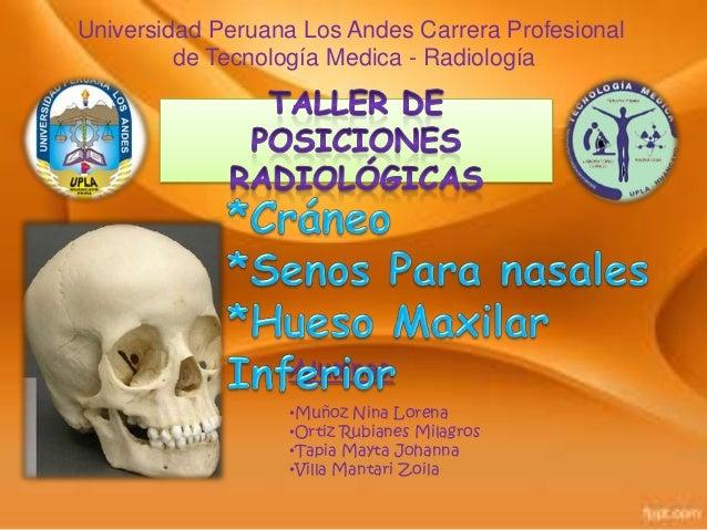 Universidad Peruana Los Andes Carrera Profesional de Tecnología Medica - Radiología  Alumnas: •Muñoz Nina Lorena •Ortiz Ru...
