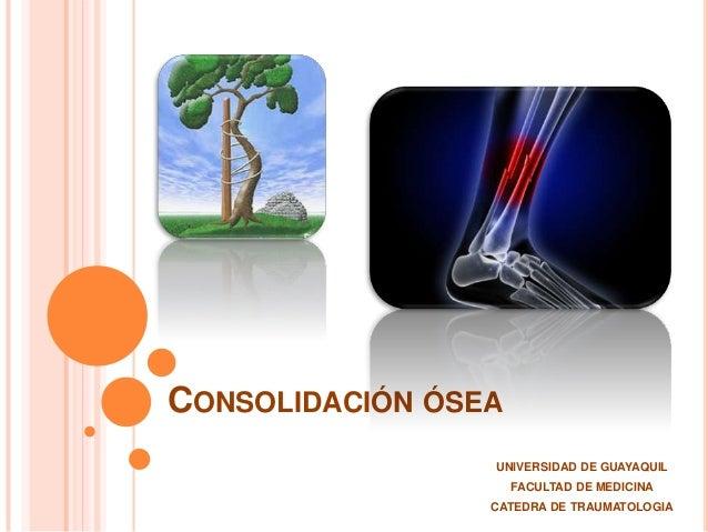 CONSOLIDACIÓN ÓSEA UNIVERSIDAD DE GUAYAQUIL FACULTAD DE MEDICINA CATEDRA DE TRAUMATOLOGIA