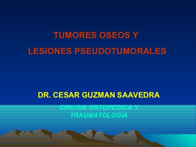 TUMORES OSEOS Y LESIONES PSEUDOTUMORALES DR. CESAR GUZMAN SAAVEDRA CIRUGIA ORTOPEDICA Y TRAUMATOLOGIA