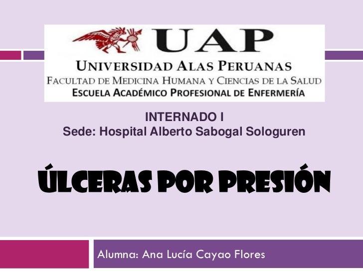 INTERNADO I Sede: Hospital Alberto Sabogal SologurenÚLCERAS POR PRESIÓN      Alumna: Ana Lucía Cayao Flores