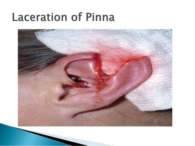 steroids in cavernous sinus thrombosis