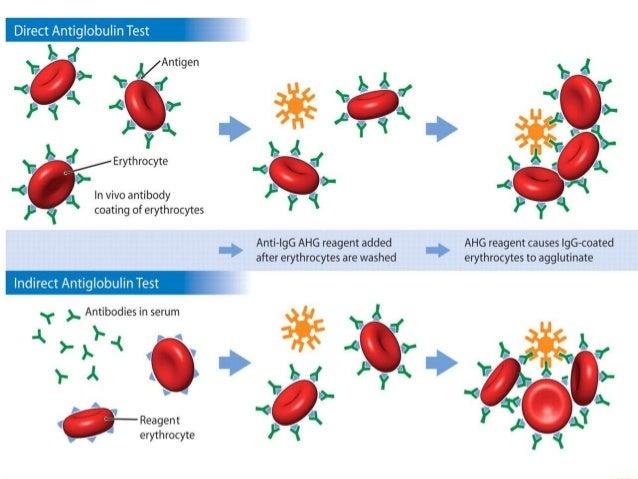 Extracorpuscular hemolytic anemia