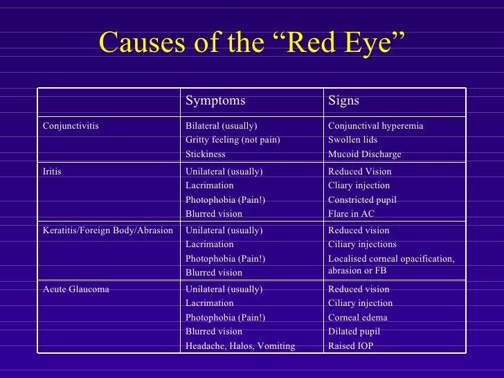allergic conjunctivitis steroid eye drops