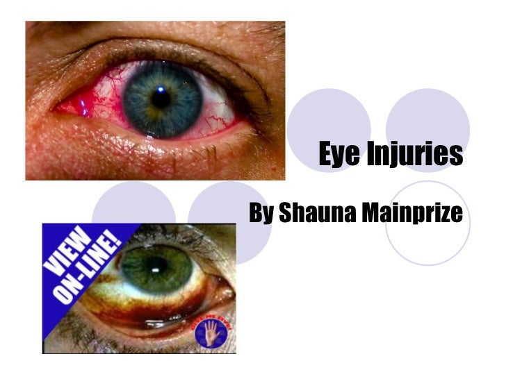 Eye Injuries By Shauna Mainprize