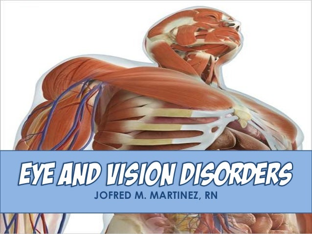 MS Eye and Vision Disorders