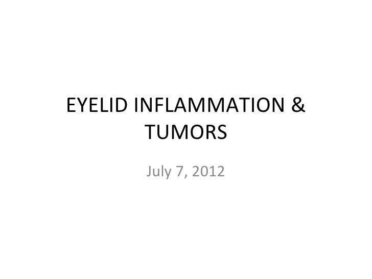 EYELID INFLAMMATION &        TUMORS       July 7, 2012