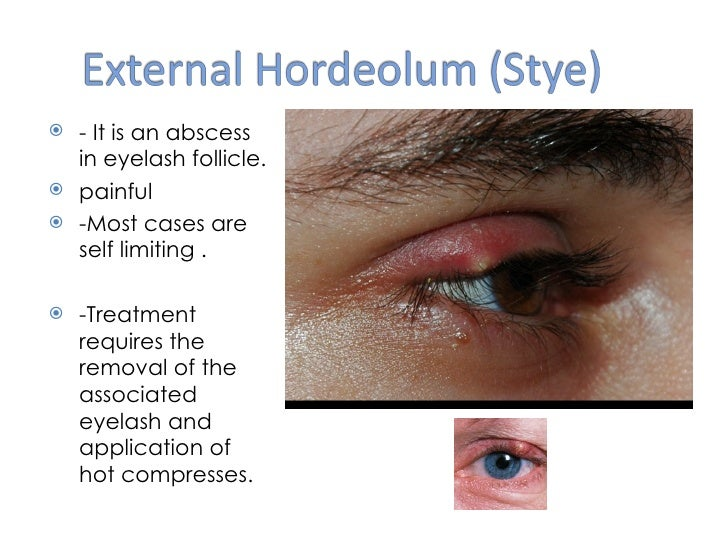Eyelid problems - NHS Choices
