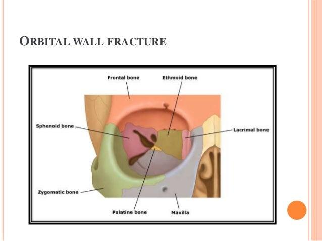 Orbital Rim Fracture Fracture Types  Orbital