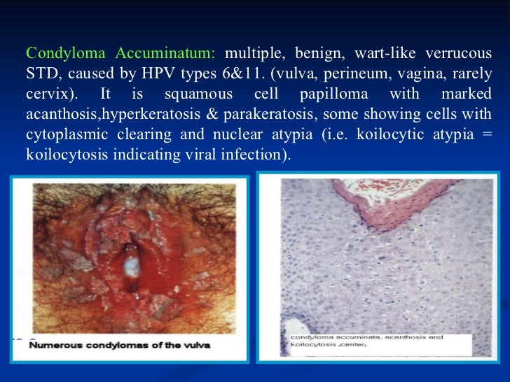 Vulvar Intraepithelial Neoplasia (vin) DISEASES OF THE...