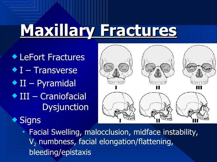 Maxillary Fractures <ul><li>LeFort Fractures </li></ul><ul><li>I – Transverse </li></ul><ul><li>II – Pyramidal </li></ul><...