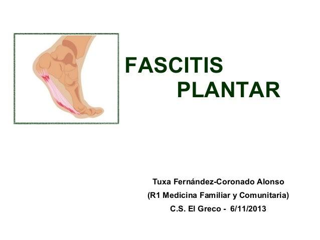 FASCITIS PLANTAR  Tuxa Fernández-Coronado Alonso (R1 Medicina Familiar y Comunitaria) C.S. El Greco - 6/11/2013