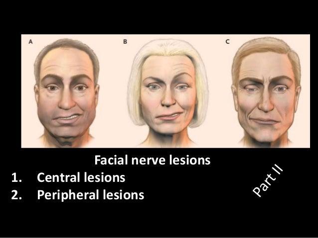clinical investigationperipheral facial palsy descriptive studyat