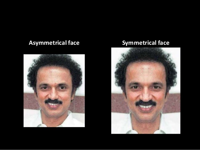 Asymmetrical facial expression