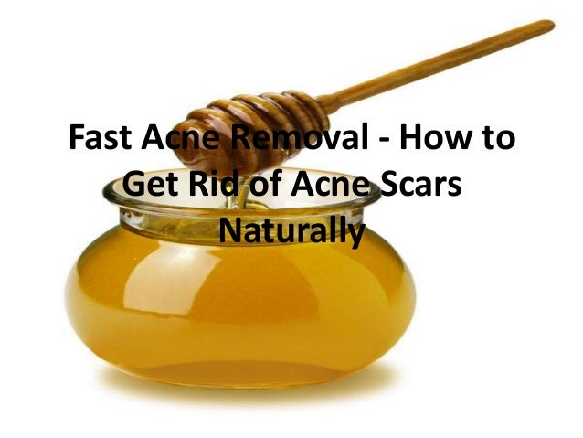 Fast Acne Removal - How toGet Rid of Acne ScarsNaturally