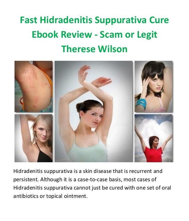 Fast Hidradenitis Suppurativa Cure Ebook Review - Scam or Legit Therese Wilson Hidradenitis suppurativa is a skin disease ...