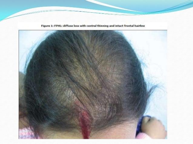 Female pattern hair loss extensions trendy hairstyles in the usa female pattern hair loss extensions pmusecretfo Gallery