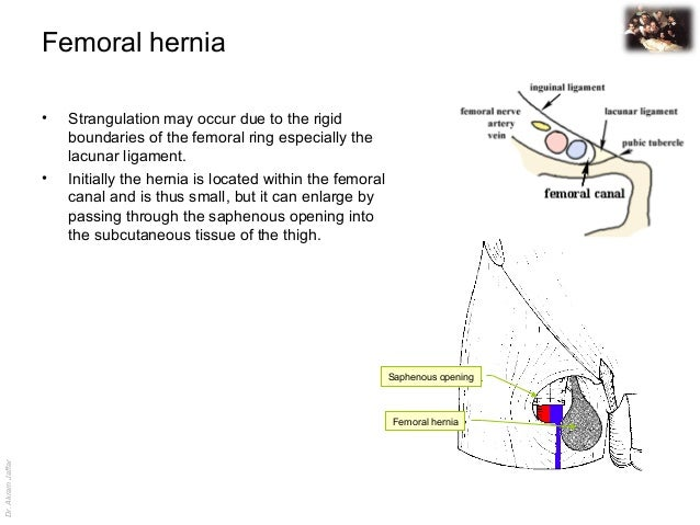 Pictures Of Femoral Ring Hernia Kidskunstfo