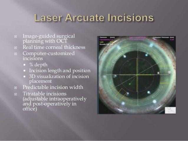 ora guided cataract surgery reviews