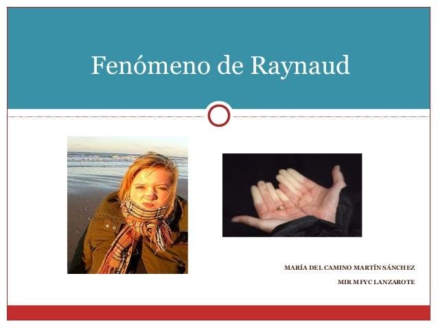 Fenómeno de Raynaud              MARÍA DEL CAMINO MARTÍN SÁNCHEZ                          MIR MFYC LANZAROTE