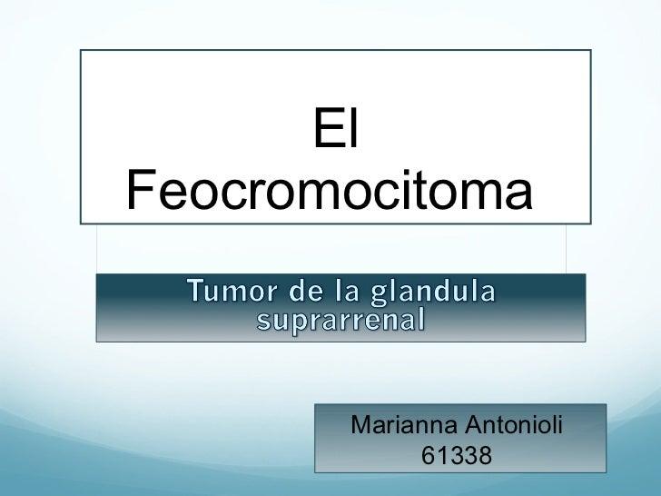 El Feocromocitoma   Marianna Antonioli  61338