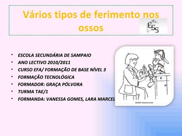 Vários tipos de ferimento nos                 ossos•   ESCOLA SECUNDÁRIA DE SAMPAIO•   ANO LECTIVO 2010/2011•   CURSO EFA/...