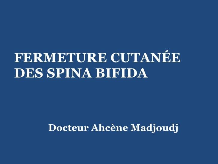 FERMETURE CUTANÉE DES SPINA BIFIDA  Docteur Ahcène Madjoudj