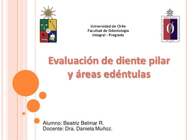 Evaluación de diente pilary áreas edéntulasUniversidad de ChileFacultad de OdontologíaIntegral - PregradoAlumno: Beatriz B...