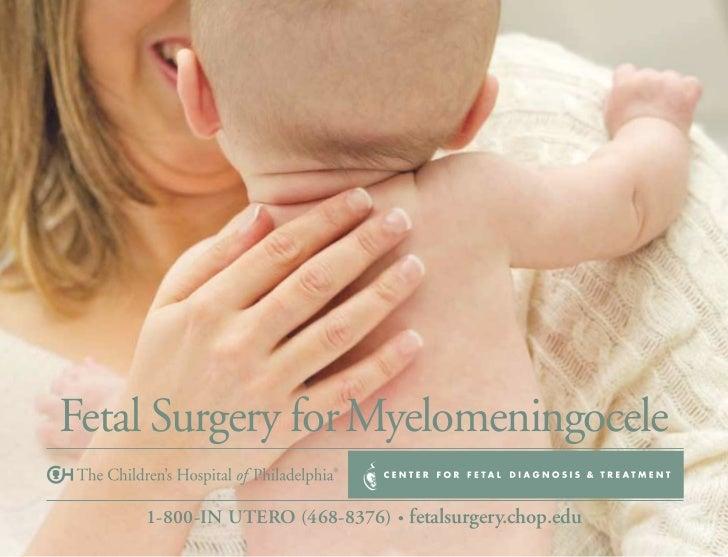 Fetal Surgery for Myelomeningocele    1-800-IN UTERO (468-8376) • fetalsurgery.chop.edu