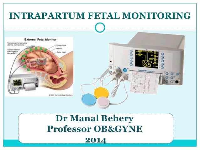 INTRAPARTUM FETAL MONITORING Dr Manal Behery Professor OB&GYNE 2014