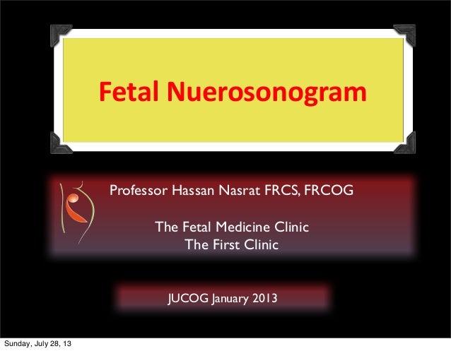 Fetal  Nuerosonogram   Professor Hassan Nasrat FRCS, FRCOG The Fetal Medicine Clinic The First Clinic  JUCOG January 2...