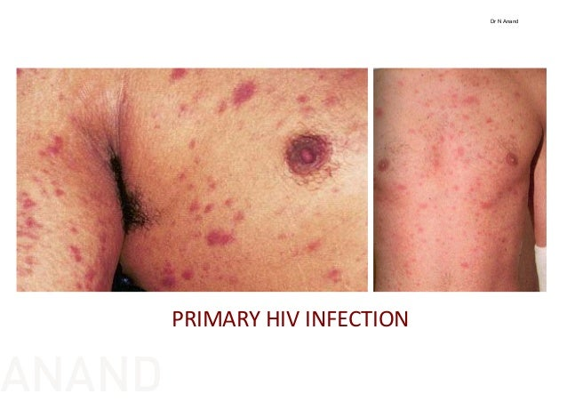 Related Keywords & Suggestions for hiv infection rash