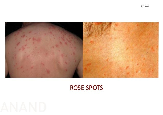 Roseola Rash - Pictures, Treatment, Symptoms, Causes ...