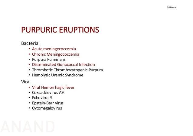 purpura corticosteroids