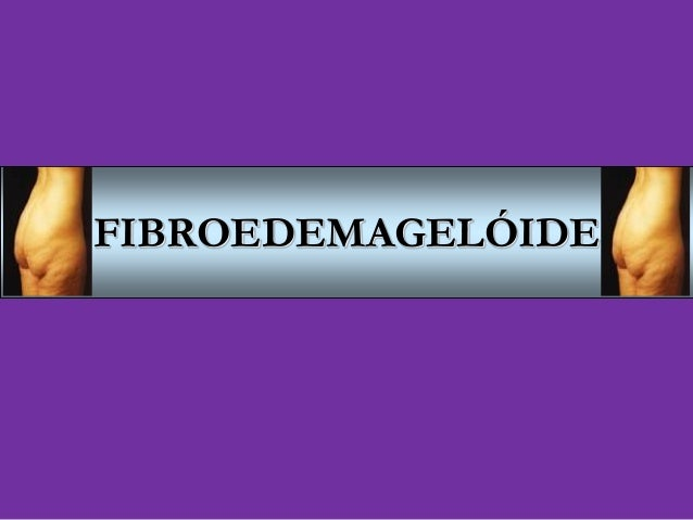 Fibroedemageloide