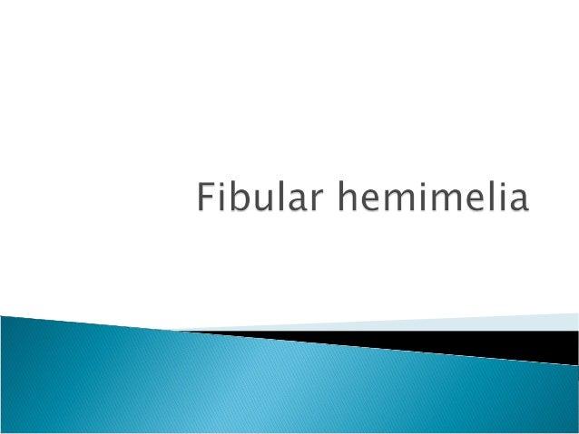 Fibular hemimelia