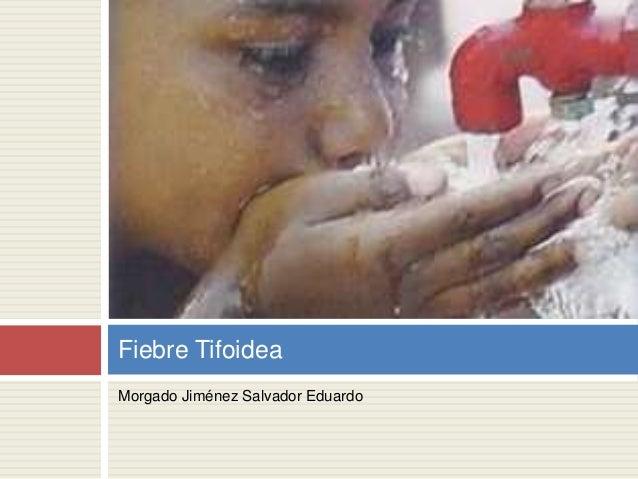 Morgado Jiménez Salvador Eduardo Fiebre Tifoidea