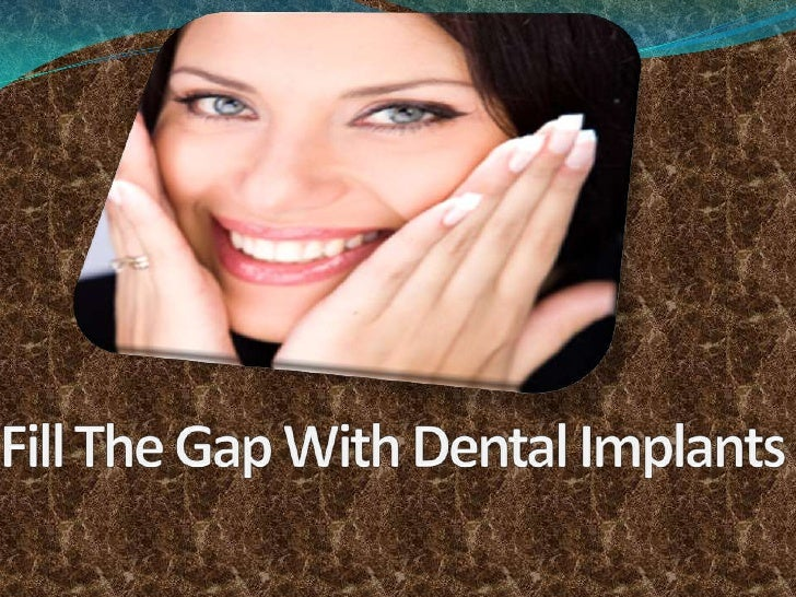 Fill The Gap With Dental Implants