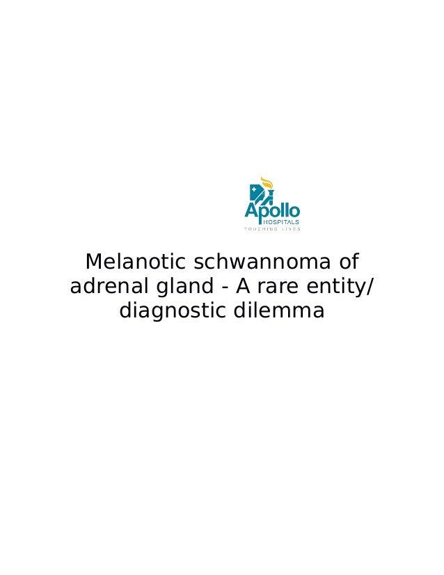 Melanotic schwannoma of adrenal gland - A rare entity/ diagnostic dilemma